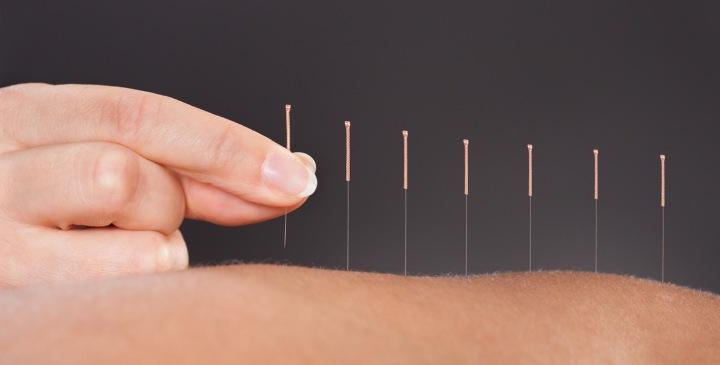 Akupunktiolla ja kuivakuppauksella eroonselkäkivuista